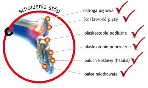 Schodzenie stop maja zwiazek z obuwiem medycznym